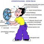 Penyakit Tiroid Dan Cara Rawatan